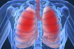 Врач-пульмонолог: «Делать прививку БЦЖ детям нужно обязательно»